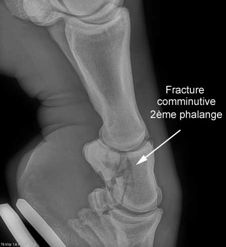 fracture phalange cheval